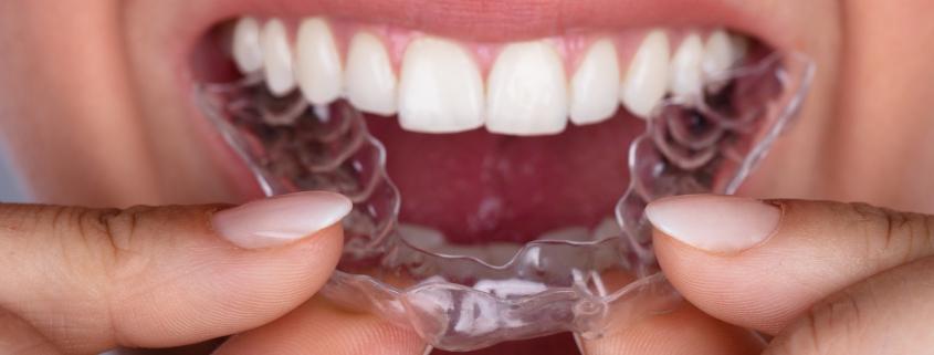 Aligner-Therapie in der Zahnarztpraxis Karcher & Kollegen, Bühl