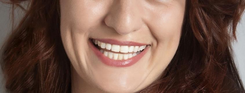 Zahnaufhellung oder auch Bleaching gennant. Bequem und sicher in unserer Praxis