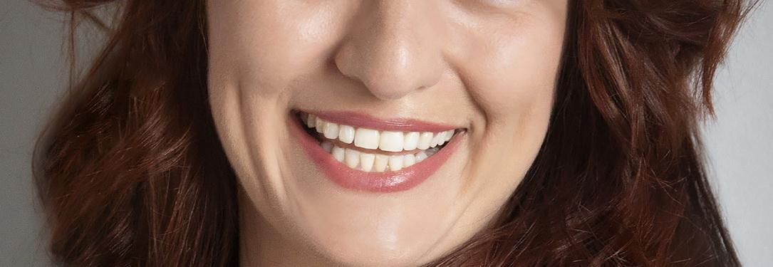 Bilder zahnfarbe a1 contrensubshea: Zahnfarbe